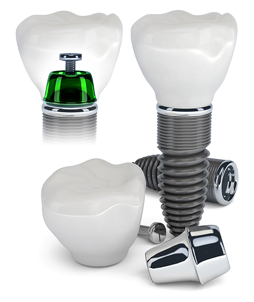 Dental Implants near Hanover