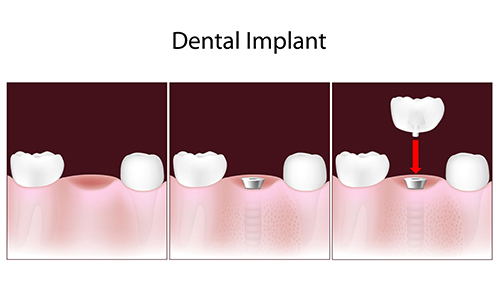 Newark Dental Implants